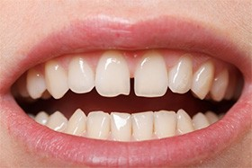 A person with gapped front teeth.
