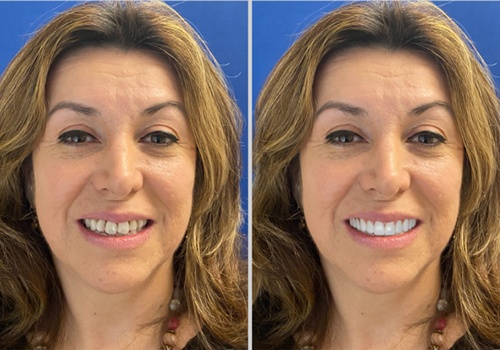 simulation of woman's teeth becoming whiter and straighter