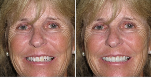 simulated preview of older woman's straighter, brighter smile