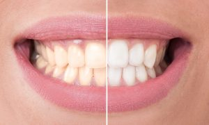 Change your dull, yellow smile into a bright one with teeth whitening in Juno Beach. Easy and safe, this aesthetic procedure improves lives.