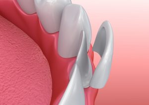 Model of a veneer being placed on a front tooth