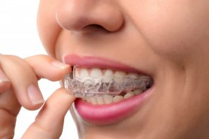 A person removing their clear aligner.