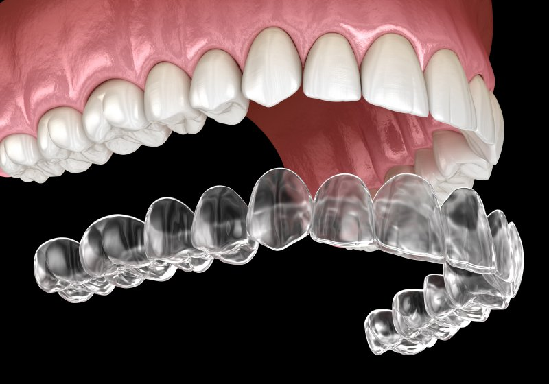 Digital image of an Invisalign aligner being placed on a top row of teeth